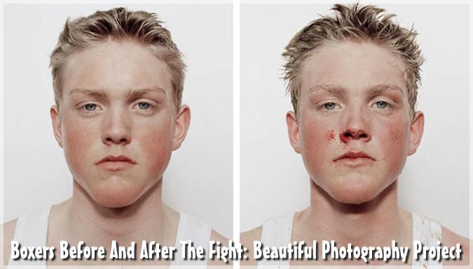10代のボクサーたちの試合前と試合後の写真を撮影した写真シリーズ