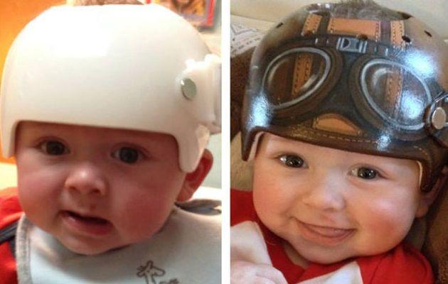 子どもの医療用ヘルメットも素敵なヘルメットに早変り!
